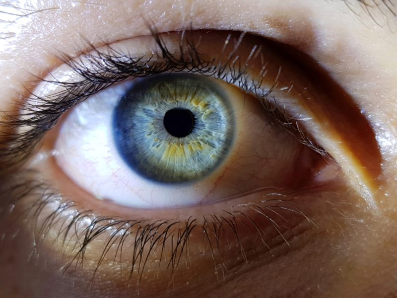 glaucoma close up of eye
