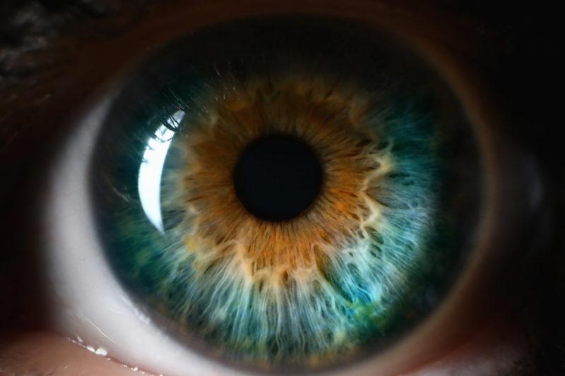 Cataracts Blue orange human eye close up background