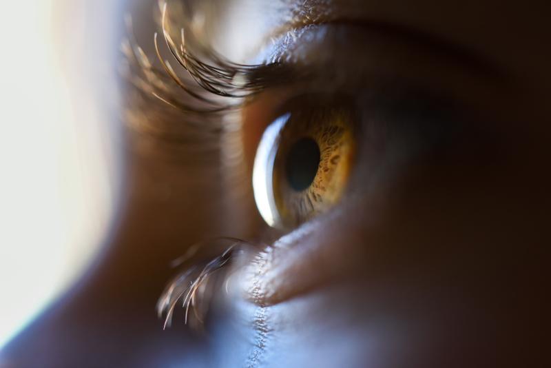 Laser treatment close up image of eye