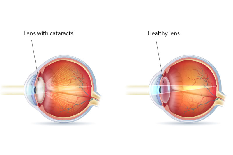 Diagram showing a healthy eye lens and one with cataract