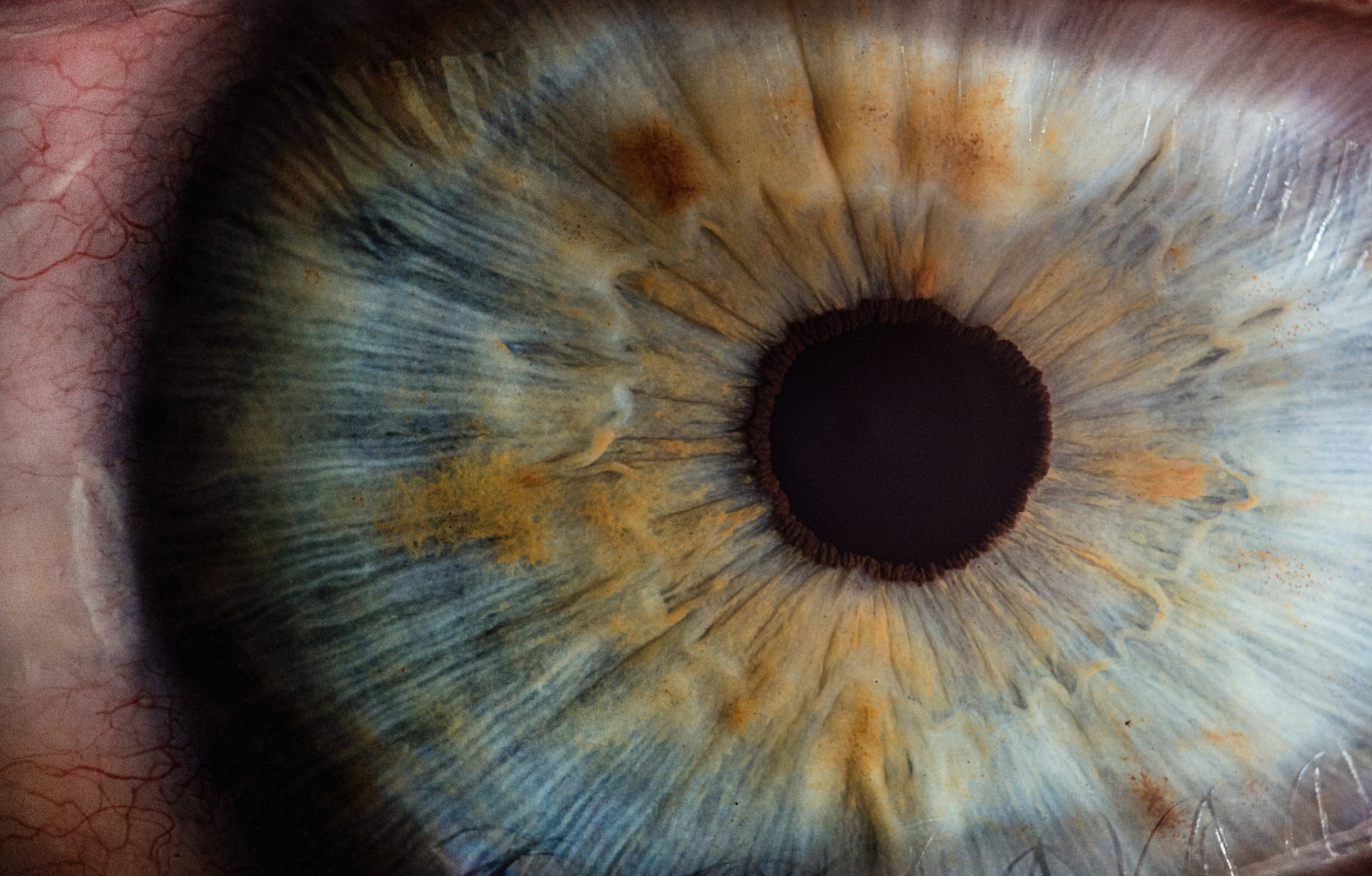 close up of eye conditions